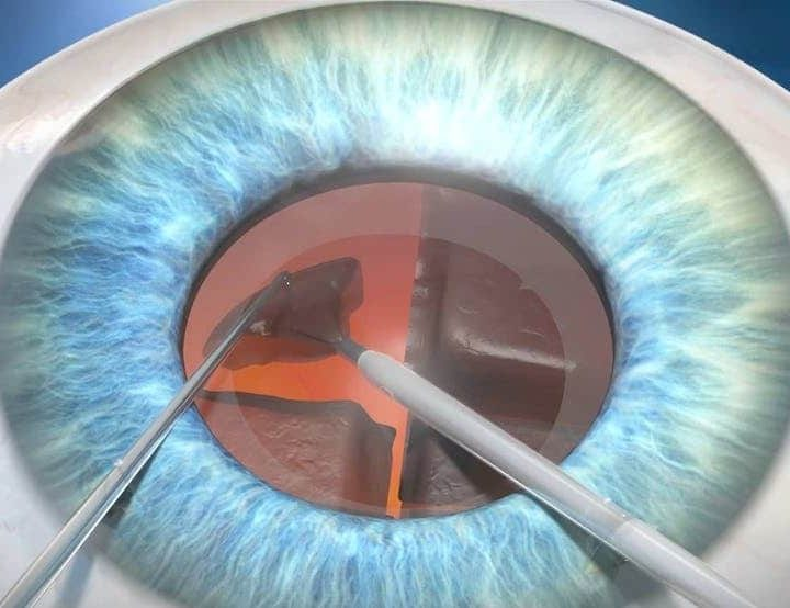 Important Things You Need to Know About Cataract Surgery